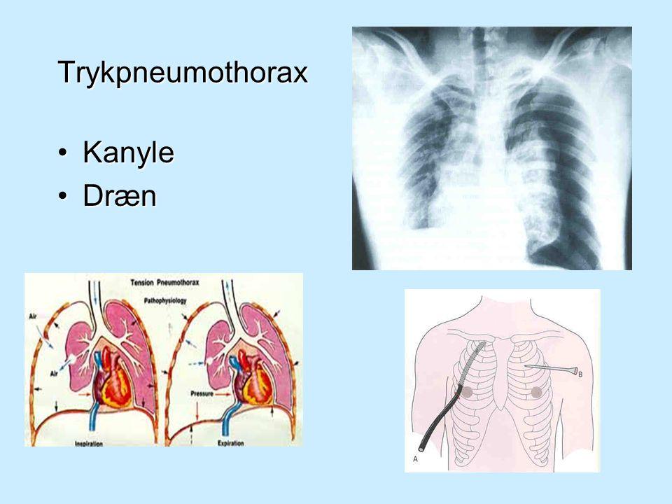 Trykpneumothorax Kanyle Dræn