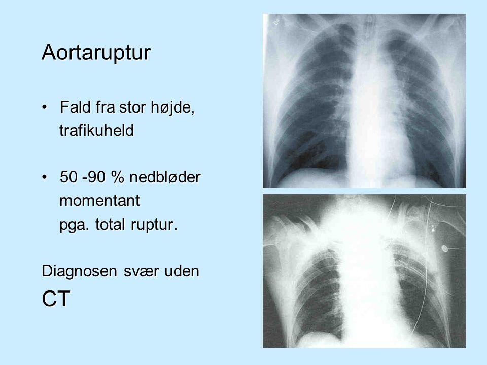 Aortaruptur CT Fald fra stor højde, trafikuheld 50 -90 % nedbløder