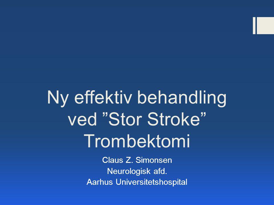 Ny effektiv behandling ved Stor Stroke Trombektomi