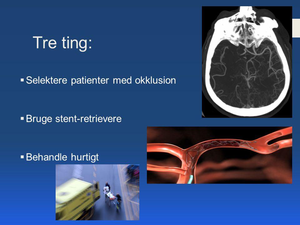 Tre ting: Selektere patienter med okklusion Bruge stent-retrievere