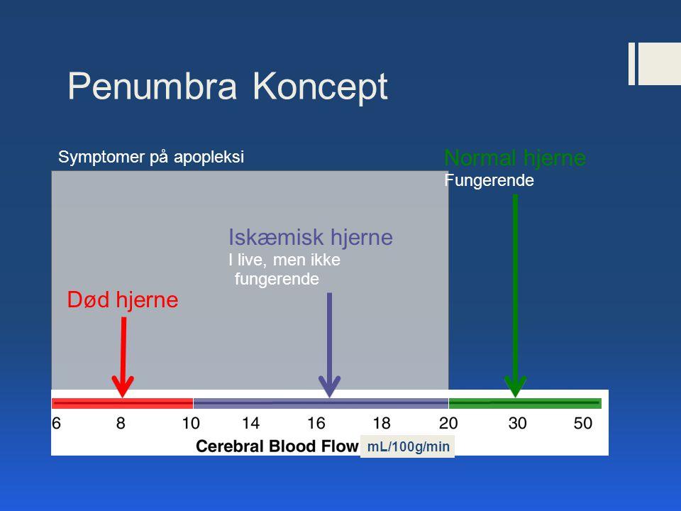 Penumbra Koncept Normal hjerne Iskæmisk hjerne Død hjerne