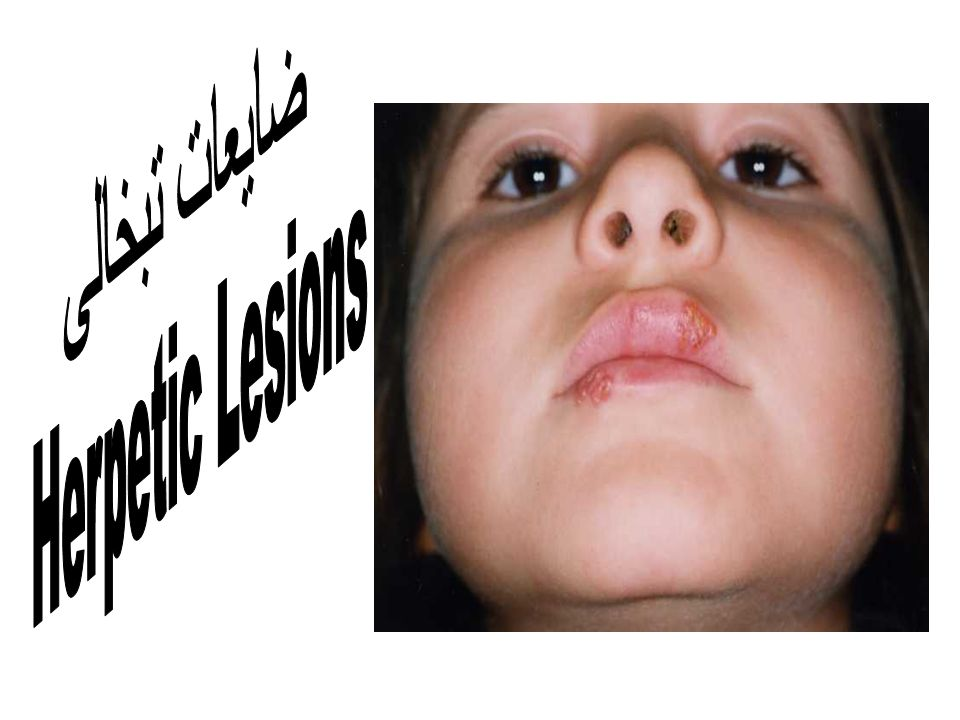 ضایعات تبخالی Herpetic Lesions