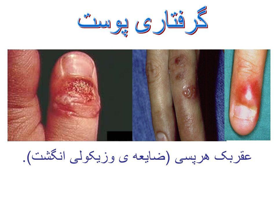 عقربک هرپسی (ضایعه ی وزیکولی انگشت).
