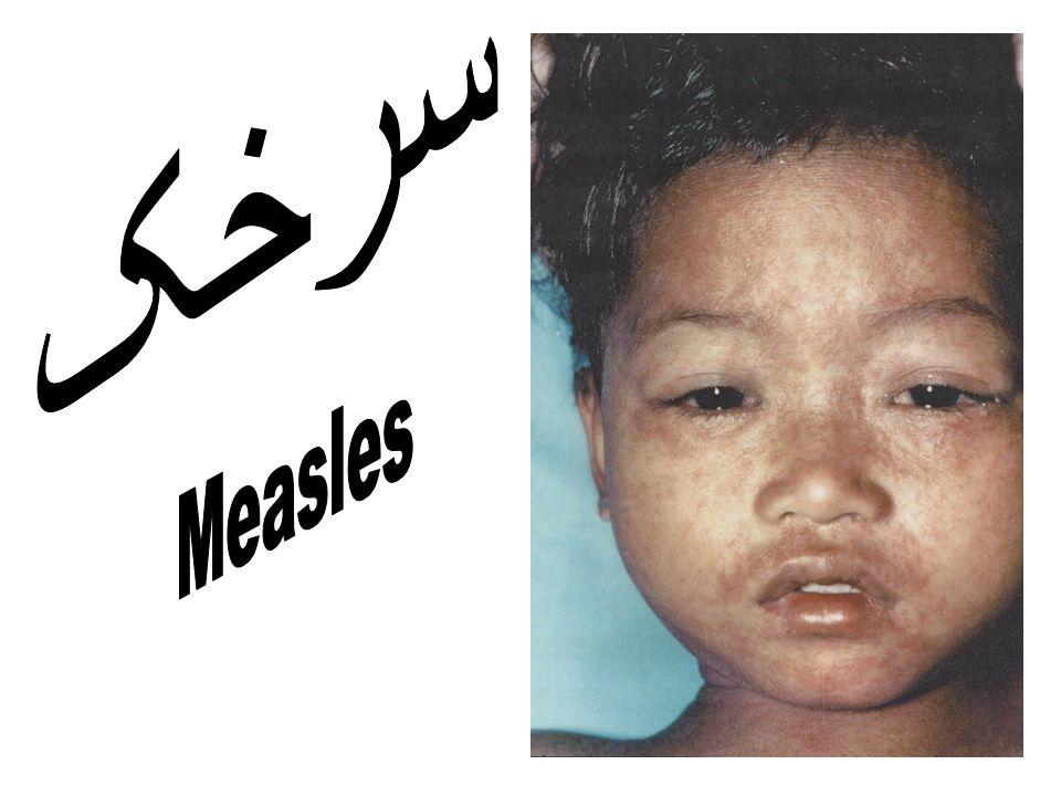 سرخک Measles