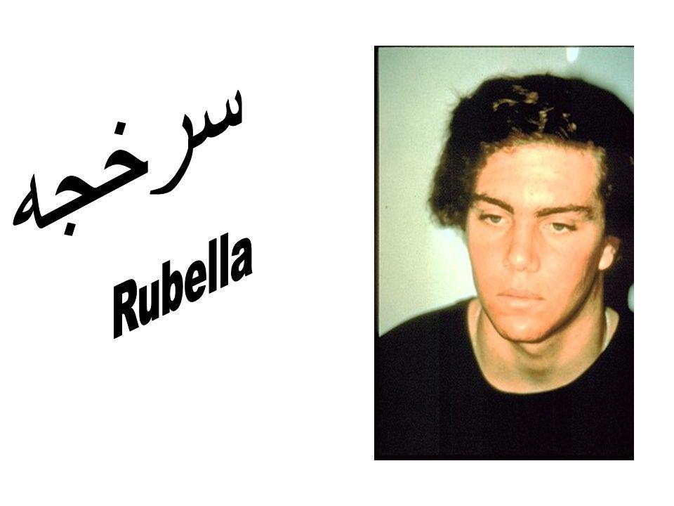 سرخجه Rubella