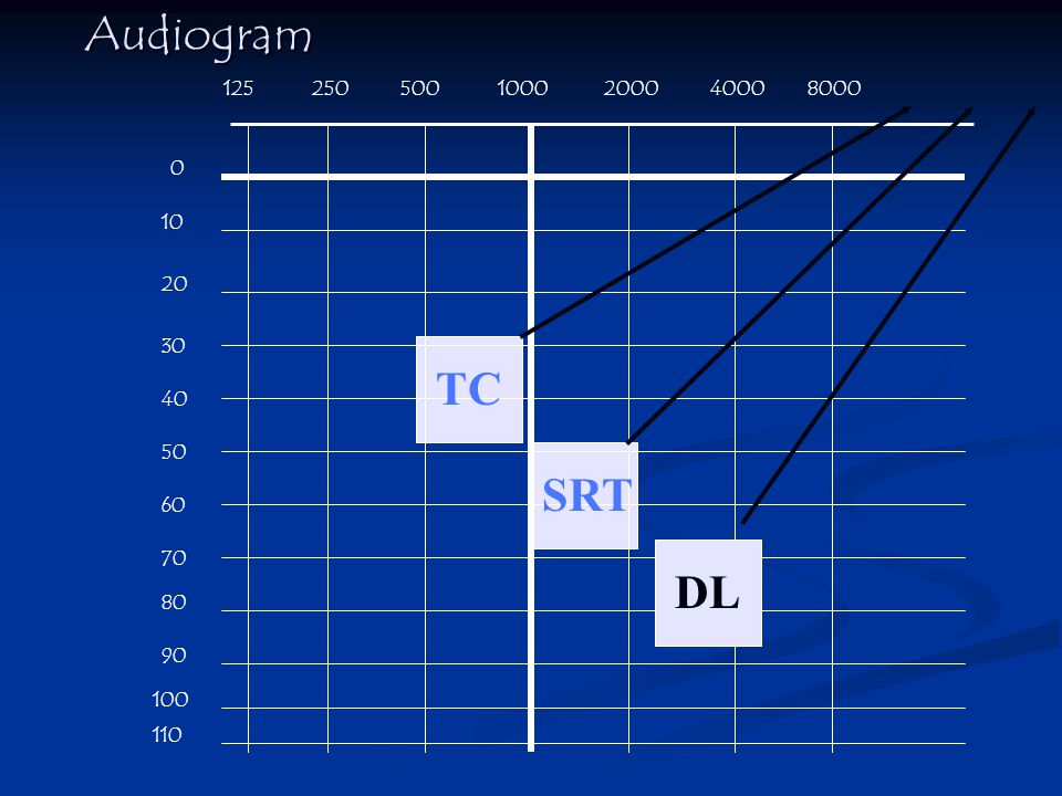 Audiogram TC SRT DL