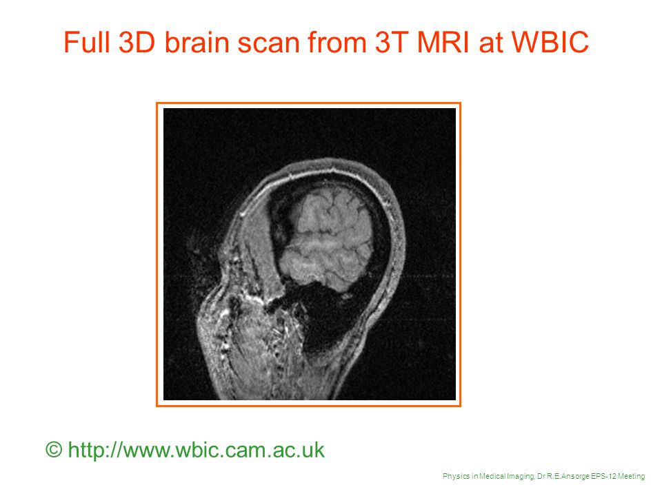 Full 3D brain scan from 3T MRI at WBIC