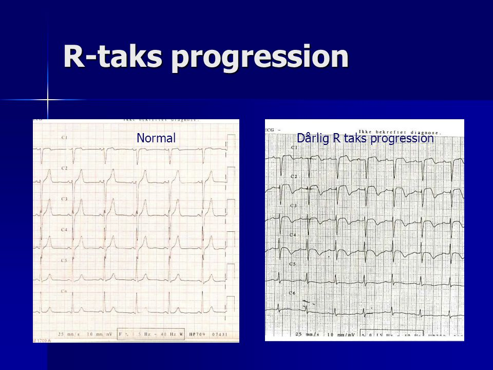 R-taks progression Normal Dårlig R taks progression