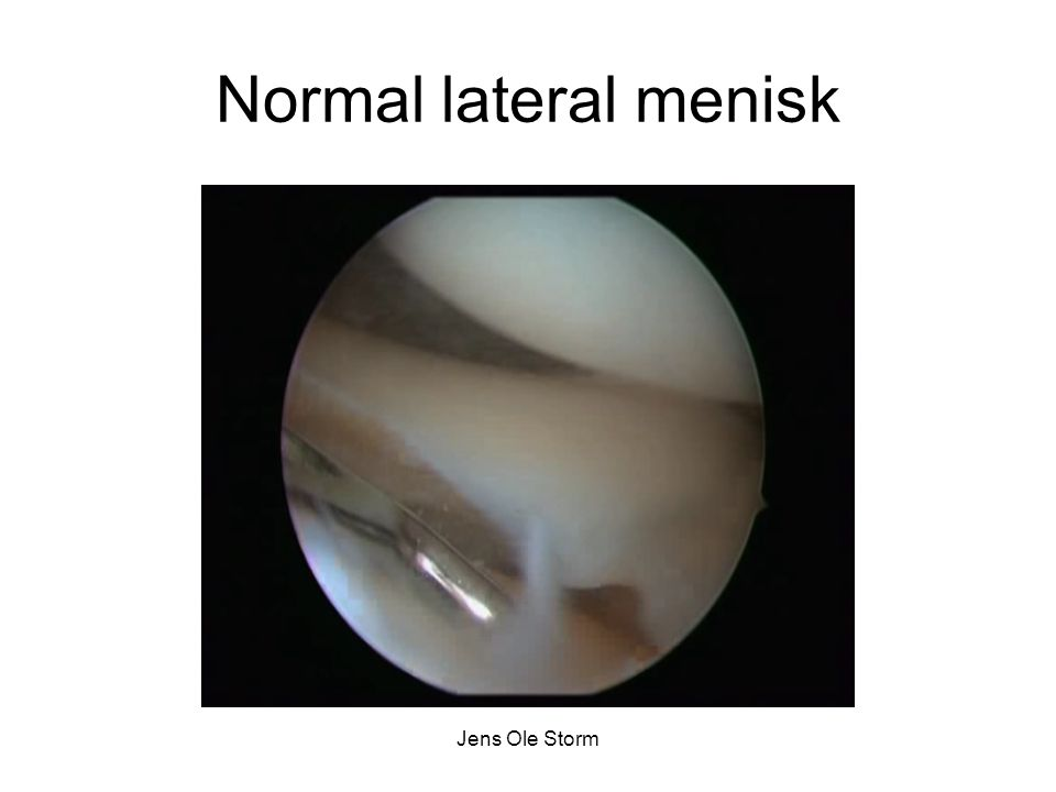 Normal lateral menisk Jens Ole Storm
