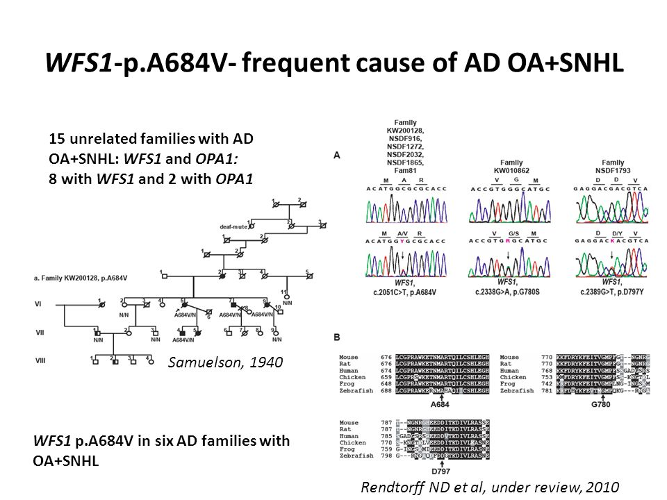 WFS1-p.A684V- frequent cause of AD OA+SNHL