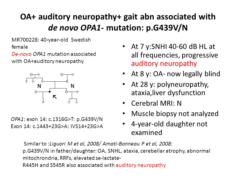 OA+ auditory neuropathy+ gait abn associated with de novo OPA1- mutation: p.G439V/N