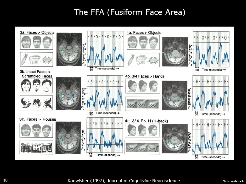The FFA (Fusiform Face Area)