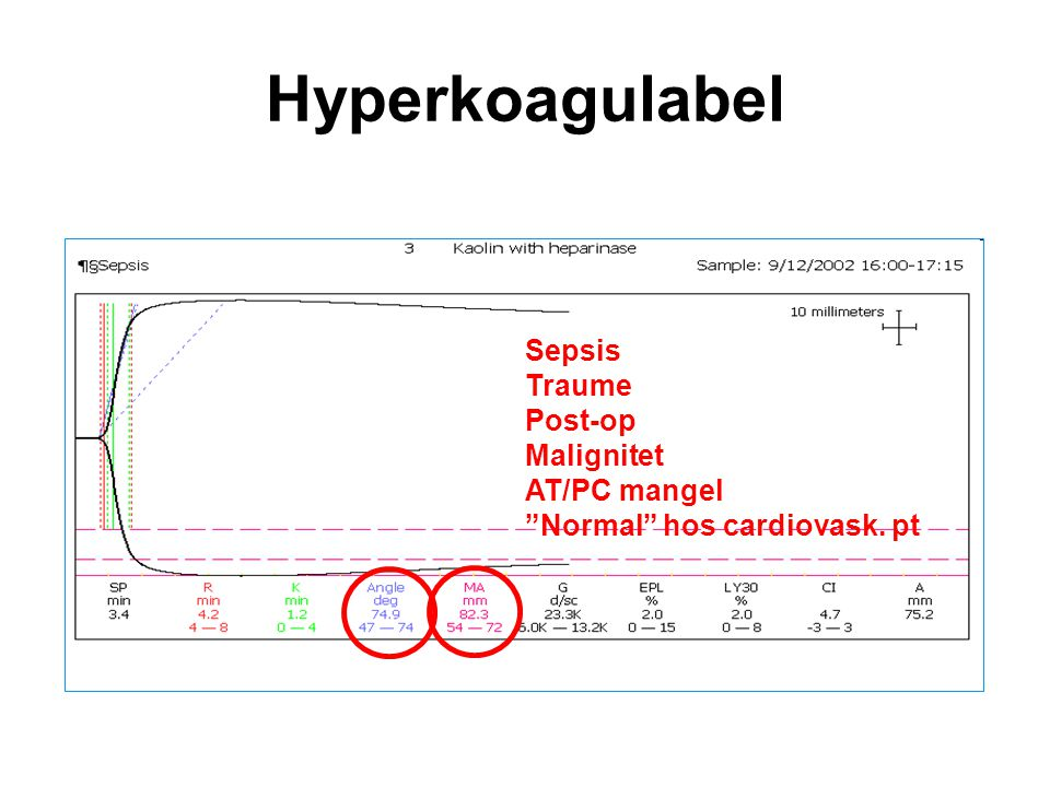 Hyperkoagulabel Sepsis Traume Post-op Malignitet AT/PC mangel