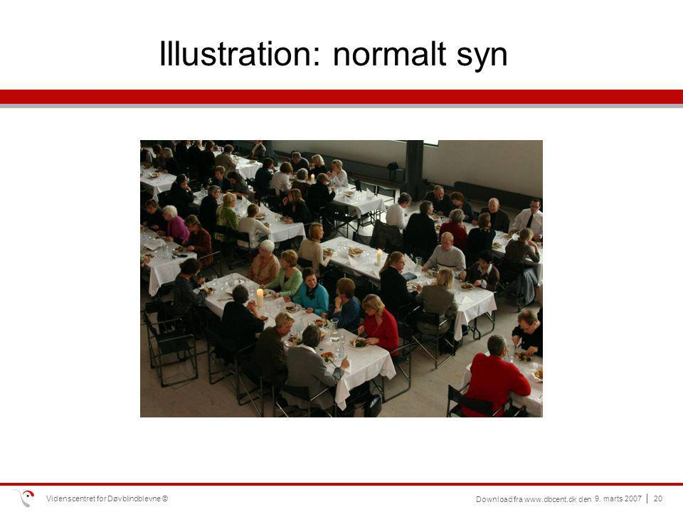 Illustration: normalt syn