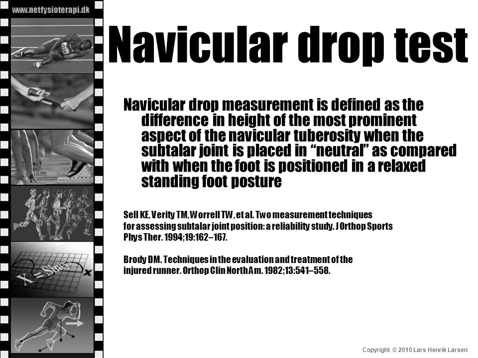 Navicular drop test