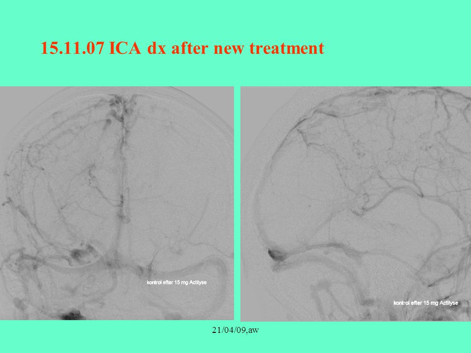 15.11.07 ICA dx after new treatment