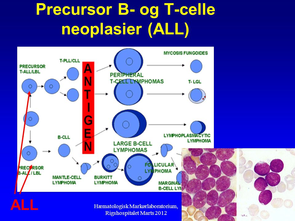 Precursor B- og T-celle neoplasier (ALL)
