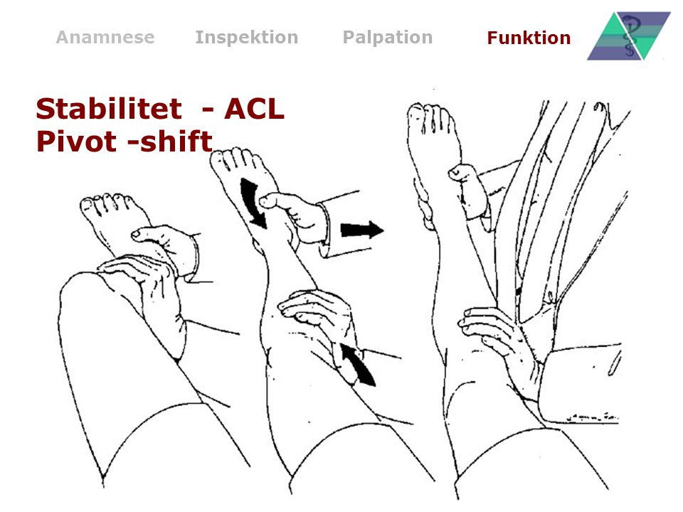 Stabilitet - ACL Pivot -shift