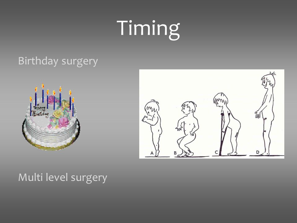 Timing Birthday surgery Multi level surgery