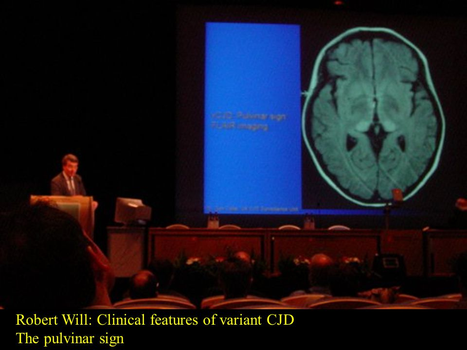 Robert Will: Clinical features of variant CJD