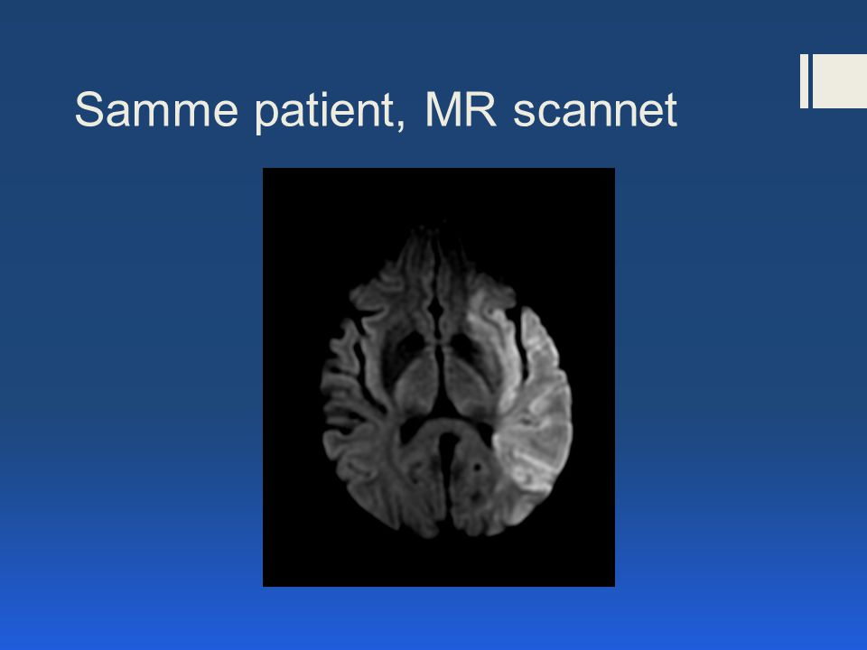 Samme patient, MR scannet